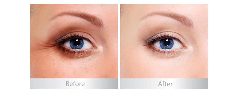Kem chống nhăn vùng mắt A&Plus Eye Cream A007 03