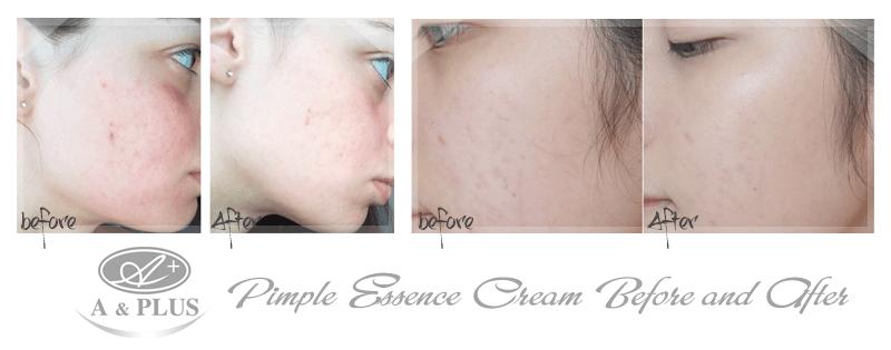 Kem trị mụn A&Plus Anti-Pimple Essence Cream A012 03