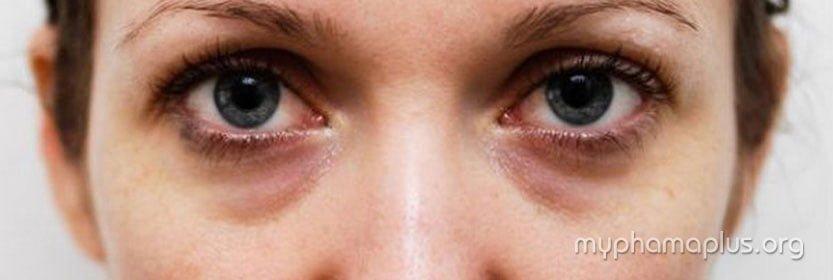 Mẹo phù phép giúp quầng thâm mắt biến mất chỉ sau 02 ngày 2