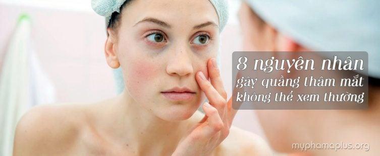 1. Nguyên nhân gây quầng thâm mắt không thể xem thường!
