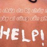 Cách chữa da bị cháy nắng lâu ngày cần ghi nhớ