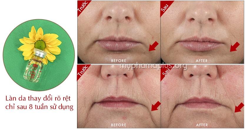 Hiệu quả sau khi dùng tinh chất collagen A&Plus